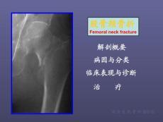 股骨颈骨折