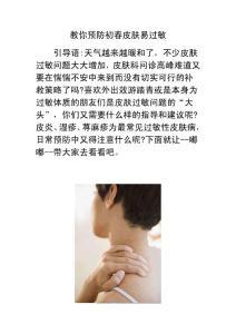 教你预防初春皮肤易过敏