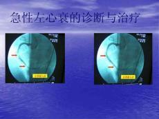 [基础医学]急性左心衰的诊断与治疗