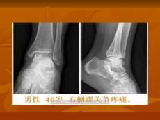 [ppt]骨内腱鞘囊肿的命名
