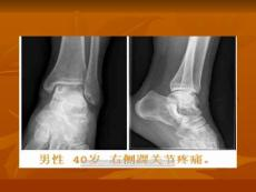 PPT-骨内腱鞘囊肿的命名