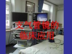 支气管镜的临床应用