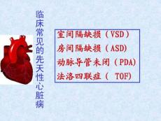 临床常见的先天性心脏病