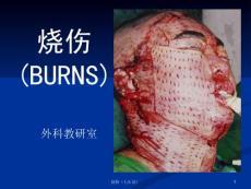 烧伤手术治疗
